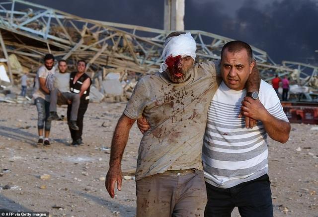 Sống sót kỳ diệu sau 30 giờ bị hất văng xuống biển vì vụ nổ Beirut - 1