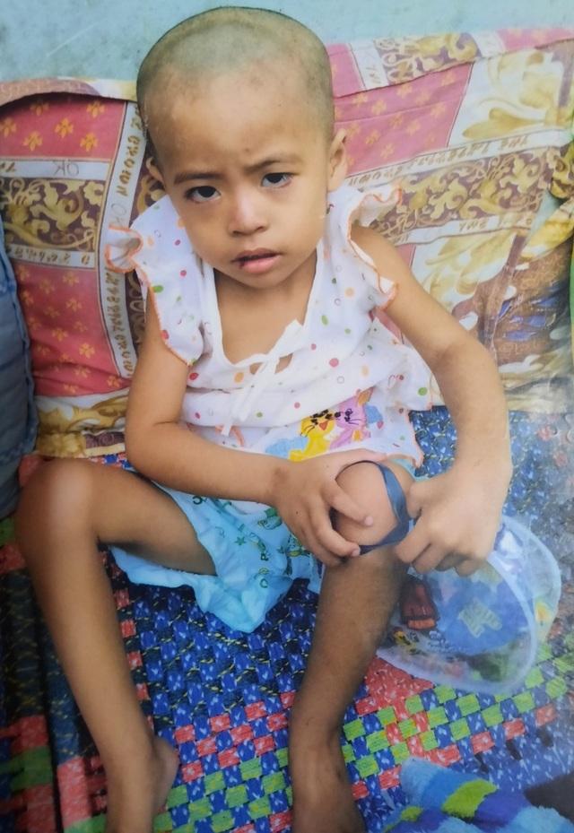 Xót thương bé gái xinh xắn 6 năm trời lấy viện làm nhà vì bệnh hiểm nghèo - 3