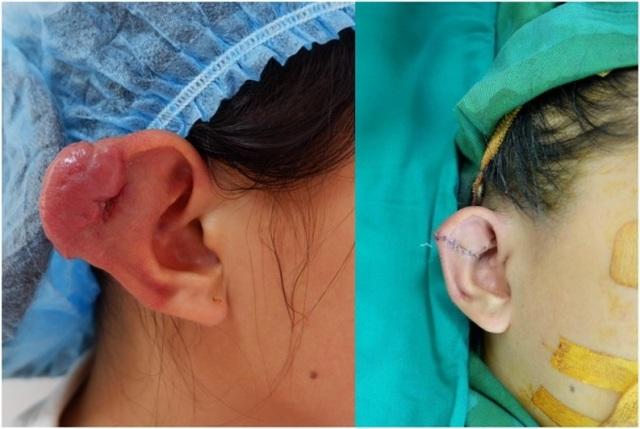Bé gái 11 tuổi bị cắt một phần tai vì khối u tưởng đơn giản - 1
