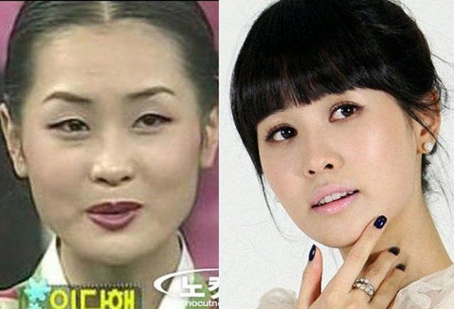 Mỹ nhân dao kéo xứ Hàn Lee Da Hae khác lạ sau nhiều năm ở ẩn - 3