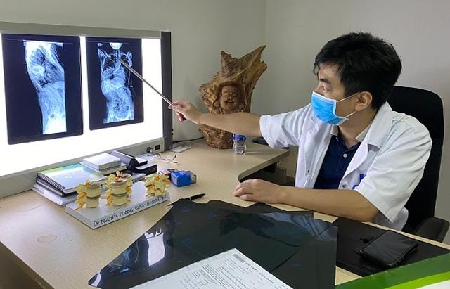 Mắc hội chứng hiếm gặp, bé gái Hà Nội có cột sống cong như chữ S - 2