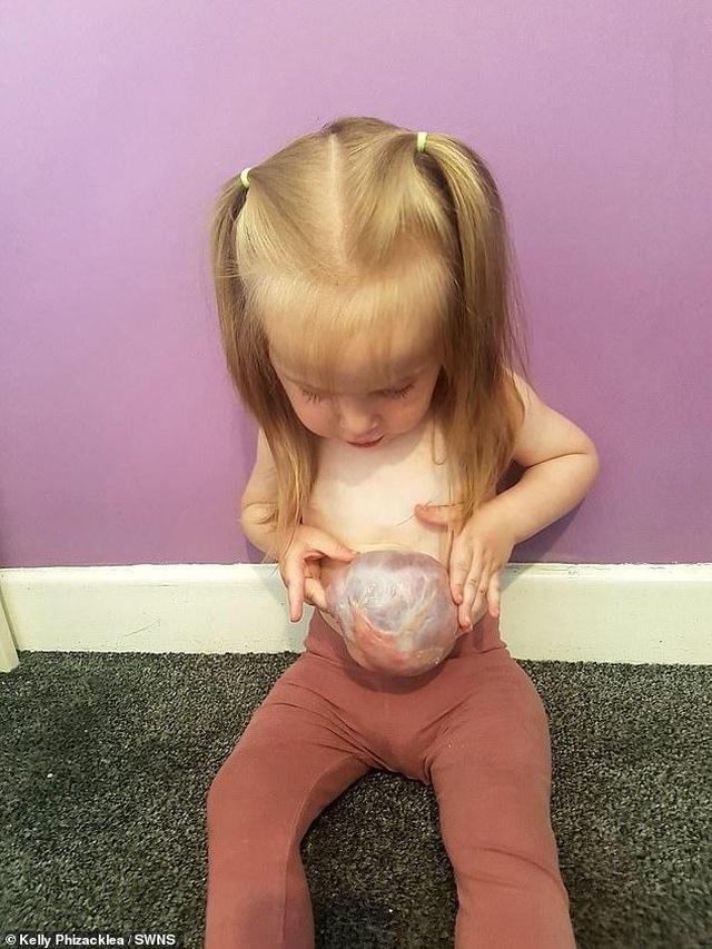Bé 2 tuổi sống vui vẻ với dạ dày, gan và ruột... ở ngoài bụng - 2
