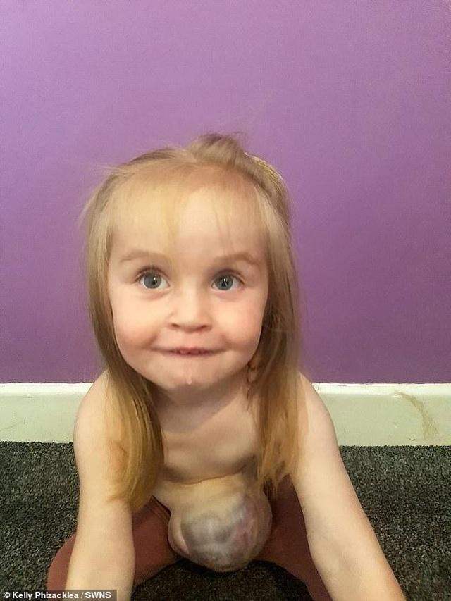 Bé 2 tuổi sống vui vẻ với dạ dày, gan và ruột... ở ngoài bụng - 3