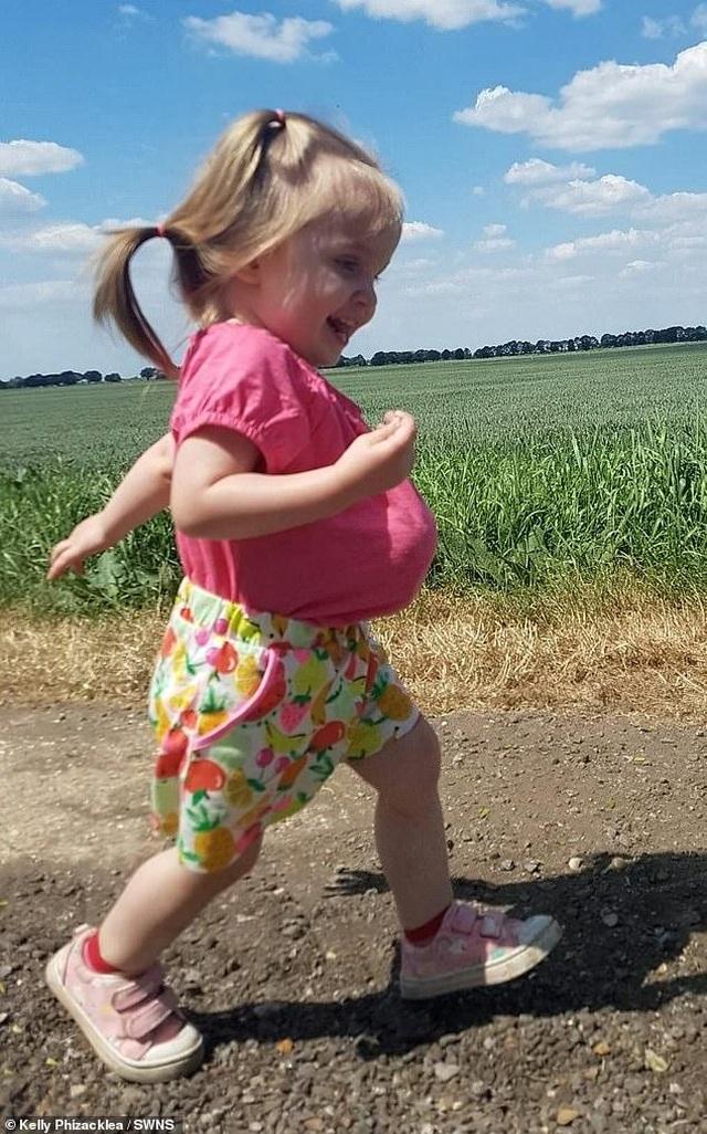 Bé 2 tuổi sống vui vẻ với dạ dày, gan và ruột... ở ngoài bụng - 4