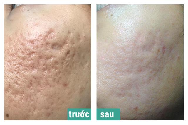 Điều trị sẹo rỗ thành công tại phòng khám da liễu Doctor Scar - 3