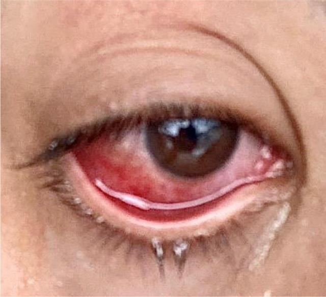 Mắt đỏ có thể là dấu hiệu nhiễm virus corona - 2