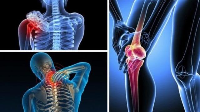 TPBVSK  Khang Cốt Đơn - Giải pháp hỗ trợ người mắc bệnh xương khớp - 2
