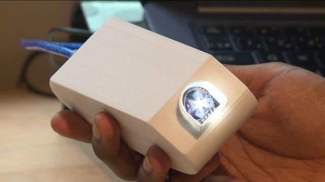 Cậu bé 14 tuổi sáng chế thiết bị phát hiện nhanh ung thư - 1
