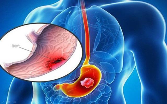 Chuyên gia chỉ rõ thủ phạm chính gây ung thư dạ dày, ai cũng nên biết để tránh - 1