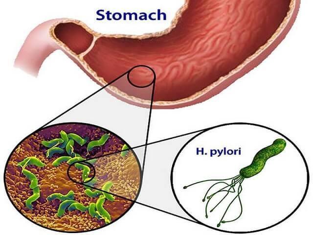 Chuyên gia chỉ rõ thủ phạm chính gây ung thư dạ dày, ai cũng nên biết để tránh - 2