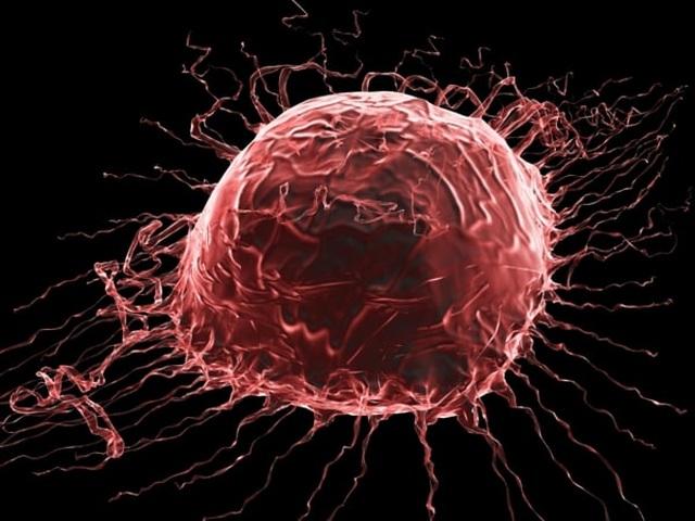 3 điểm đặc biệt của tế bào ung thư khiến chúng trở nên đáng sợ - 3