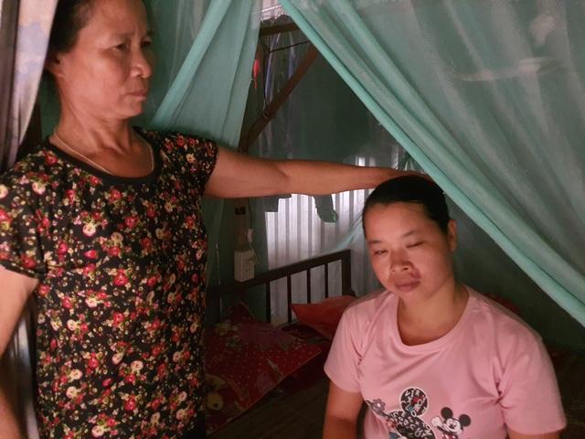 Thương gia đình nghèo lay lắt nuôi 3 đứa con cùng mang bệnh giống nhau - 3