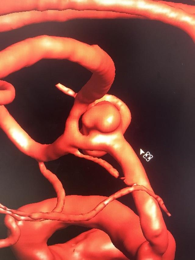 Bệnh nhân đột quỵ 2 túi phình mạch máu não được cứu sống bằng kỹ thuật mới - 1