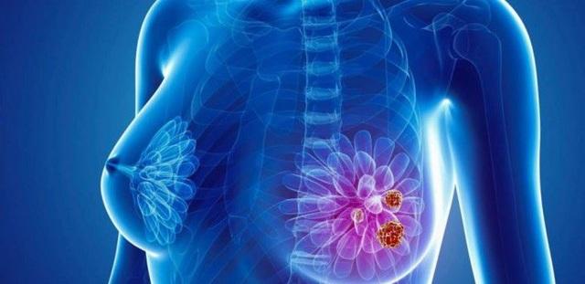 U xơ tuyến vú có tiến triển thành ung thư? - 1