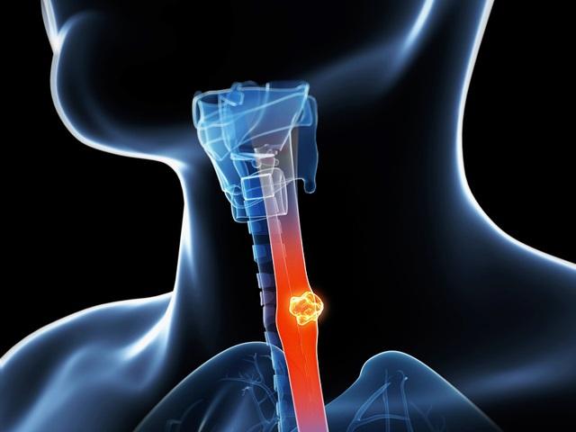 Ngừa ung thư thực quản: Chỉ kiêng thuốc lá, rượu bia là chưa đủ - 1