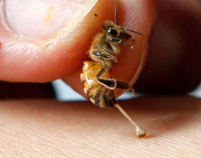Phát hiện mới: Nọc độc ong có thể tiêu diệt tế bào ung thư  - 1