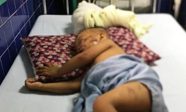 Bị chó becgie nặng 38 kg tấn công, bé trai 2 tuổi nhập viện cấp cứu - 1