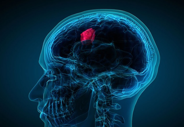 4 dấu hiệu cảnh báo khối u di căn não cần lưu ý - 1