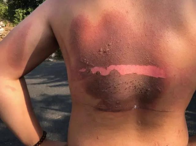 Cháy lưng vì sạc điện thoại phát nổ trong đêm - 4