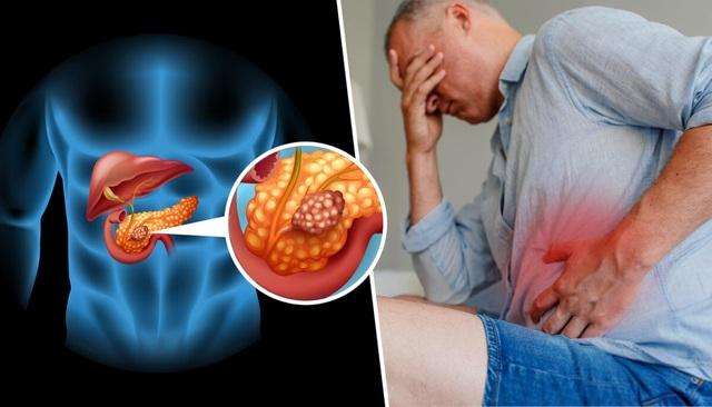 2 loại dưỡng chất giúp phòng ngừa hiệu quả ung thư tuyến tụy - 1