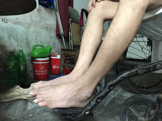Thương chàng trai trẻ hàng ngày gắn mình trên xe lăn ở góc khuất thành Vinh - 6