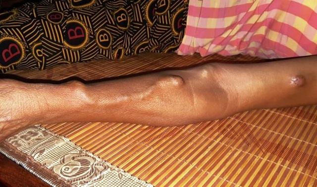 Số phận cơ cực của người phụ nữ tật nguyền có tuổi thơ không lành lặn - 3