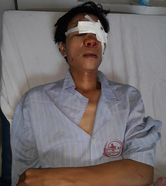 Va chạm giao thông, người đàn ông bị đánh biến dạng mặt, bê bết máu! - 5
