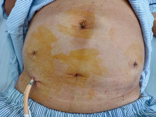 Đã mãn kinh đột nhiên xuất huyết âm đạo coi chừng ung thư - 2