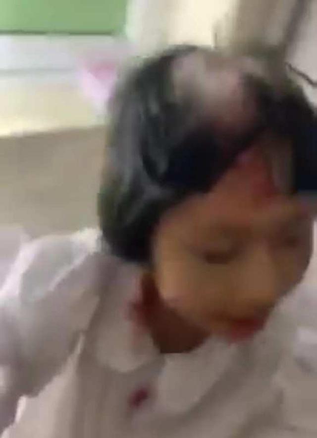 Bé gái 9 tuổi bị mẹ ruột đánh thương tích ở đầu - 1