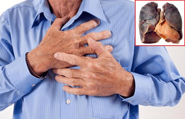 Dấu hiệu sớm nhận biết ung thư phổi - 2