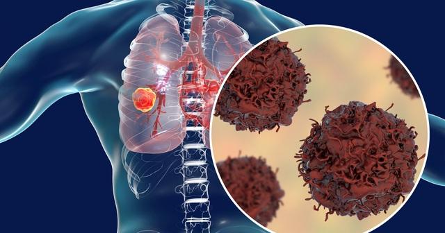 Ho dai dẳng và đau vùng lưng dưới: Nguy cơ ung thư phổi - 3