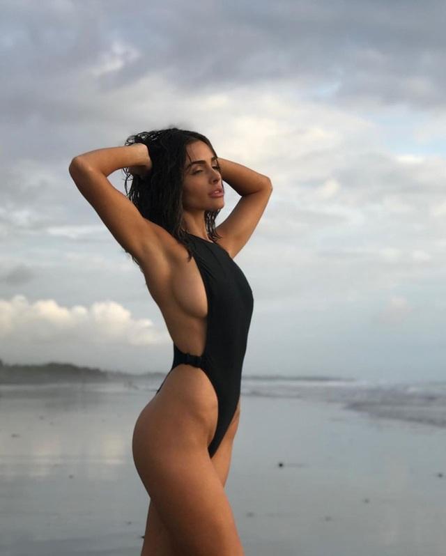 Hoa hậu Hoàn vũ tiết lộ bị lạc nội mạc tử cung - 6