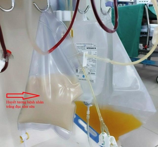 Bệnh nhân bị viêm tụy cấp, huyết tương trắng như sữa - 1