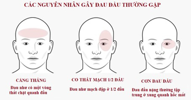 Khi nào đau đầu là dấu hiệu nguy hiểm bạn cần đi khám ngay? - 1