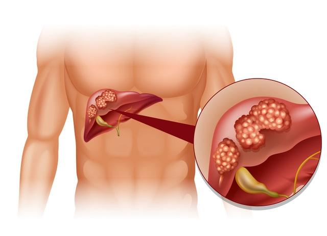 Chế độ ăn uống phản khoa học gây ung thư gan như thế nào? - 1