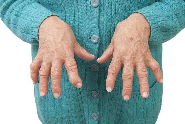 Đẩy lùi thoái hóa khớp với lời khuyên của Trưởng khoa cơ xương khớp bệnh viện Bạch Mai - 1