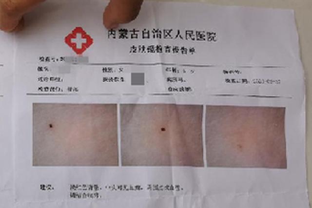 Trung Quốc: 3 giáo viên mầm non bị nghi dùng kim đâm học sinh - 1