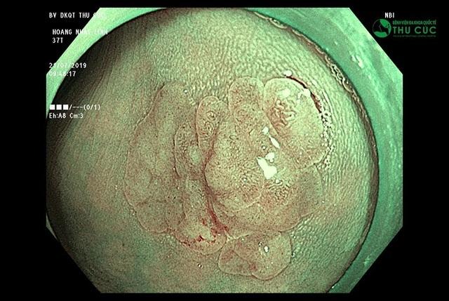 Công nghệ nội soi xác định giai đoạn vàng ngăn ngừa ung thư tiêu hóa - 2