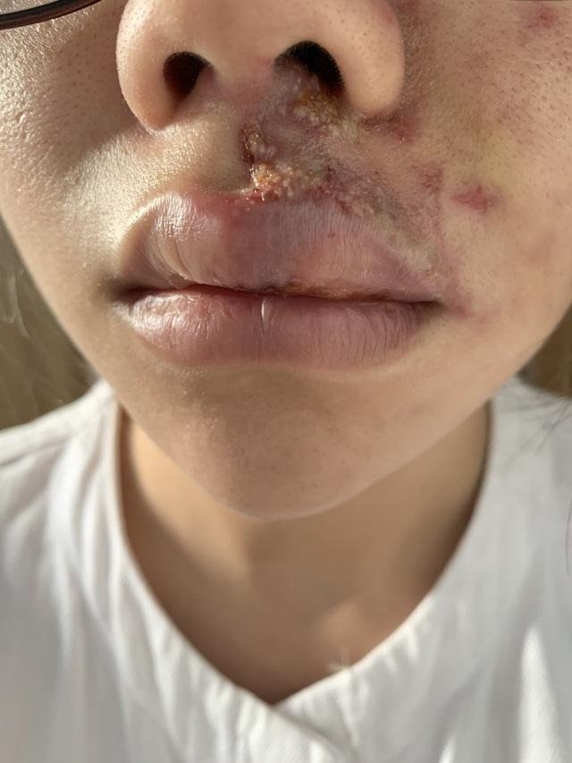 Cô gái trẻ tan nát khuôn mặt sau tiêm filler làm đẹp - 1