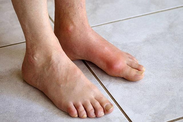 Vì sao bệnh gout đang có dấu hiệu trẻ hóa? - 2