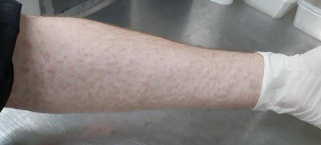 Cho hàng nghìn con muỗi đốt người để nghiên cứu khoa học - 2