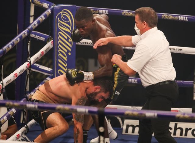 Đánh bại đối thủ, võ sĩ khoe mắt mình bị đấm sưng húp - 3