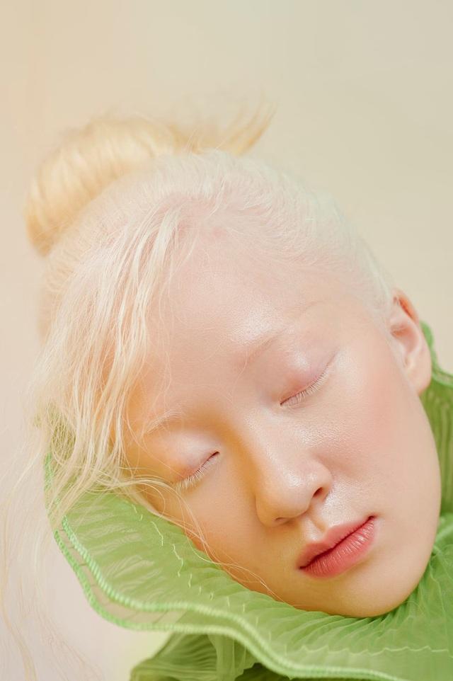 Nữ sinh bạch tạng thành mẫu ảnh đắt khách - 11