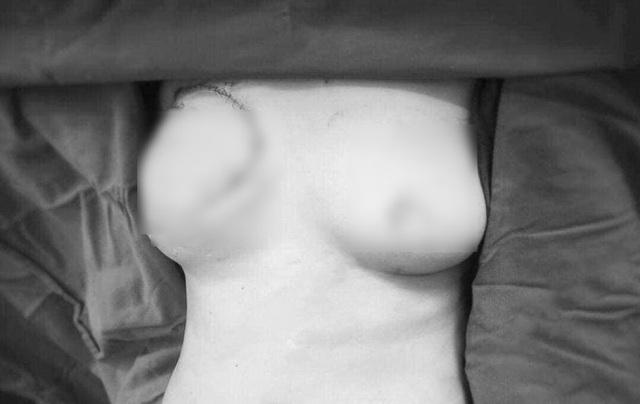 Bệnh nhân ung thư vú và những tổn thương không đến từ khối u - 5