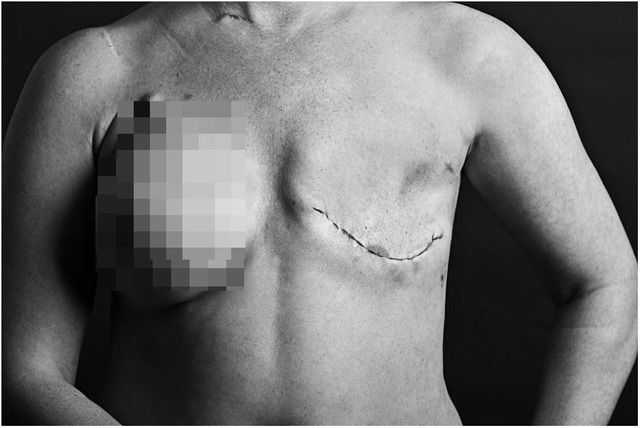 Bệnh nhân ung thư vú và những tổn thương không đến từ khối u - 1
