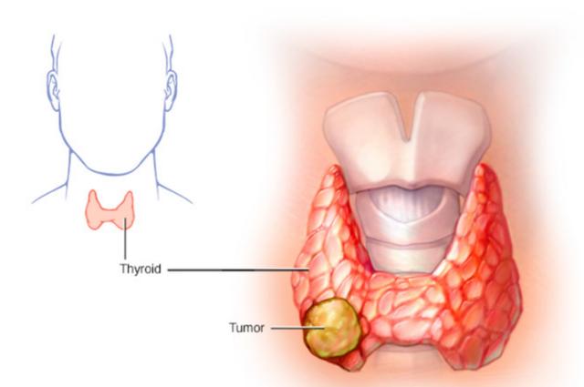 Cảnh giác với biểu hiện đơn giản này, người phụ nữ phát hiện ung thư - 1