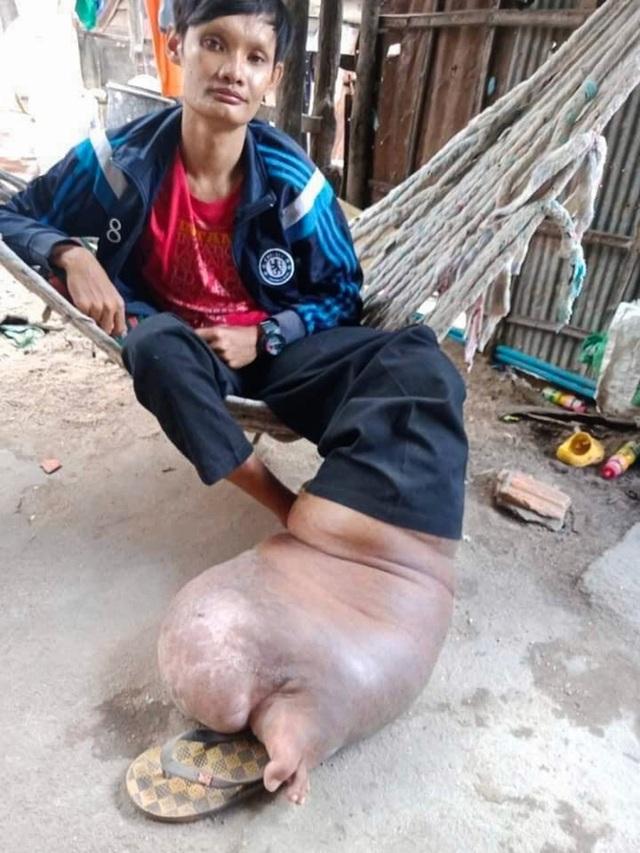 """Bị muỗi đốt không điều trị, người đàn ông mang """"bàn chân lợn"""" suốt 21 năm - 3"""