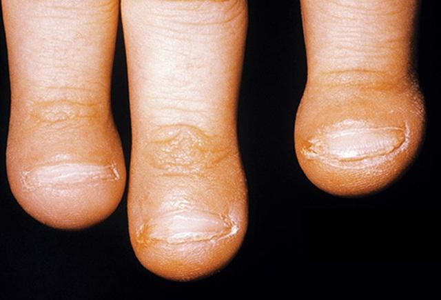 Các triệu chứng gây bất ngờ của ung thư phổi - 1