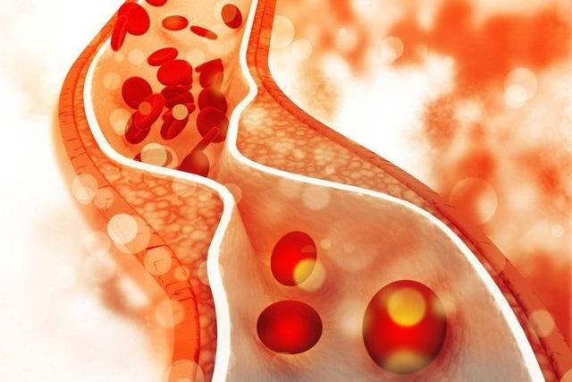 30% người Việt có loại mỡ xấu tăng nguy cơ đột quỵ - 1