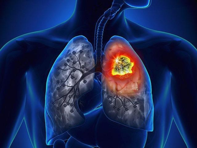 Cảnh giác với những dấu hiệu dễ bị nhầm lẫn của ung thư phổi - 1